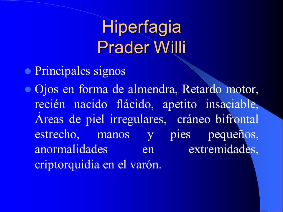 Hiperfagia Prader Willi