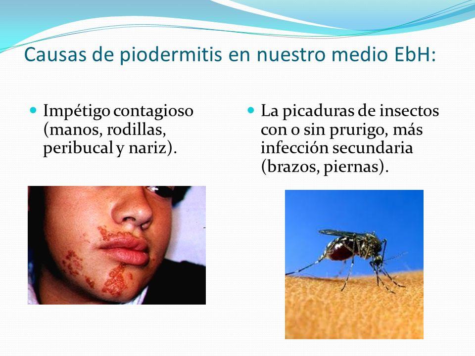 Causas de piodermitis en nuestro medio EbH:
