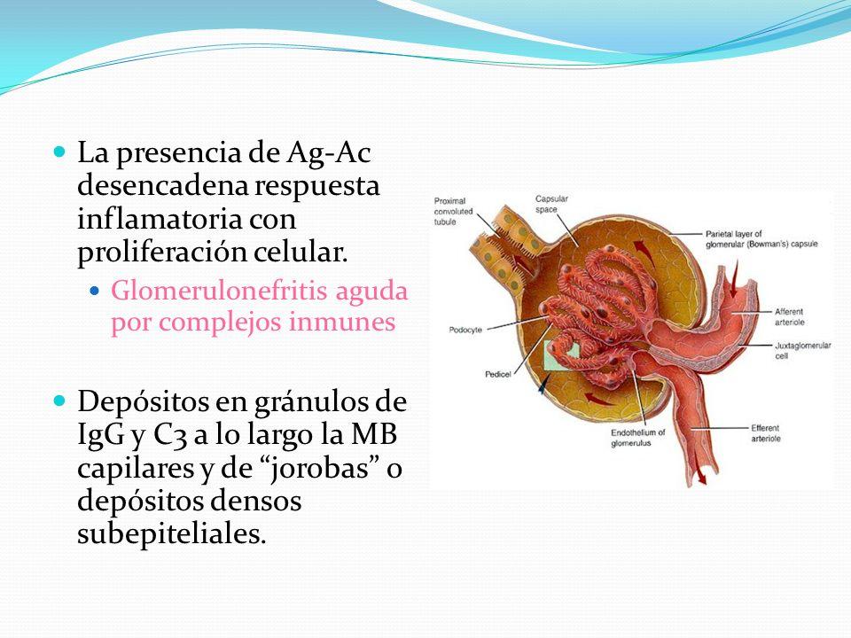 La presencia de Ag-Ac desencadena respuesta inflamatoria con proliferación celular.