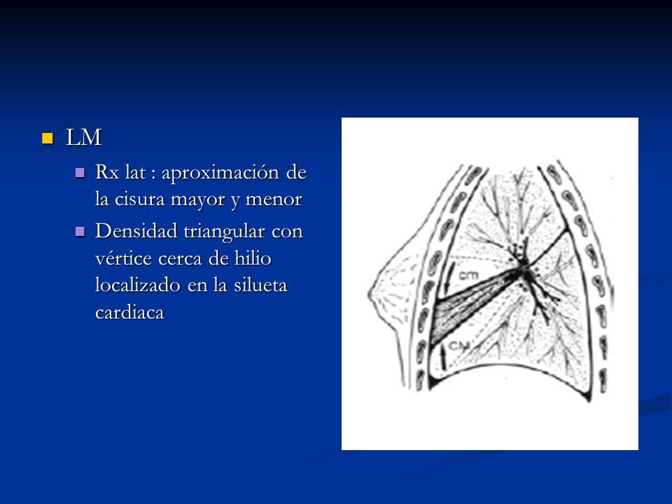 LM Rx lat : aproximación de la cisura mayor y menor