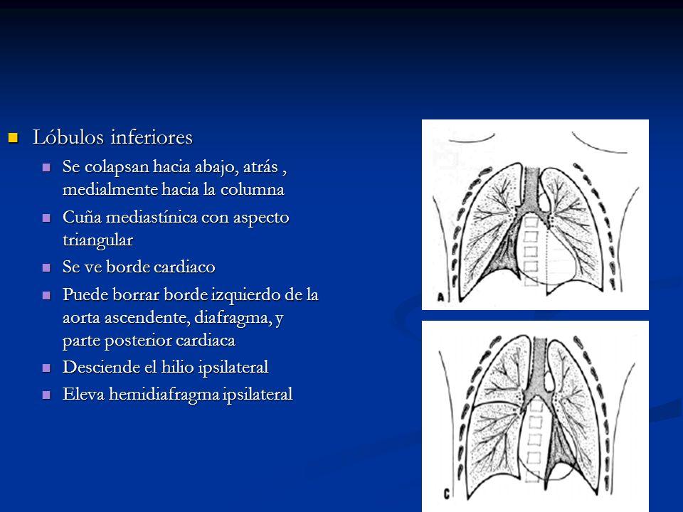 Lóbulos inferiores Se colapsan hacia abajo, atrás , medialmente hacia la columna. Cuña mediastínica con aspecto triangular.