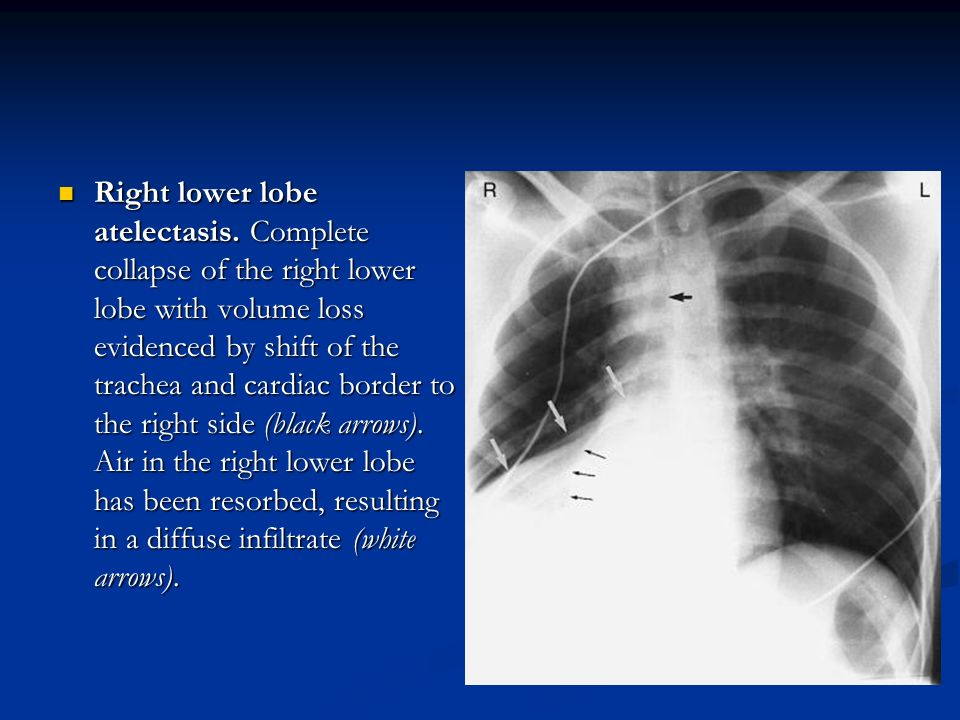 Right lower lobe atelectasis