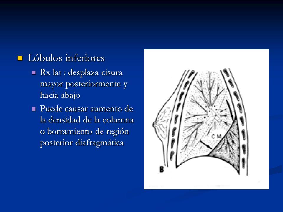 Lóbulos inferiores Rx lat : desplaza cisura mayor posteriormente y hacia abajo.