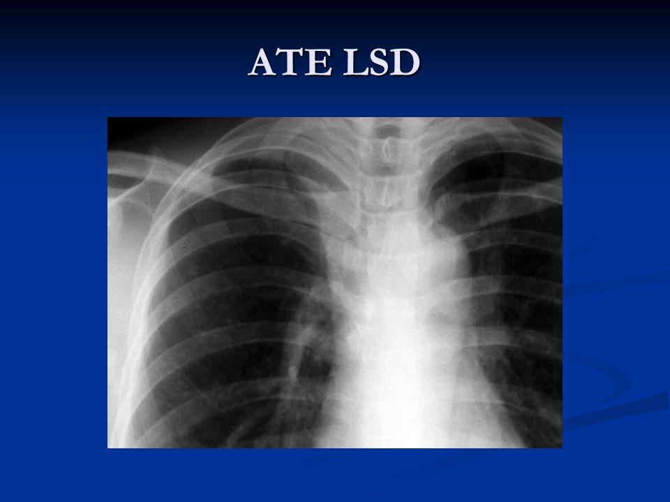 ATE LSD