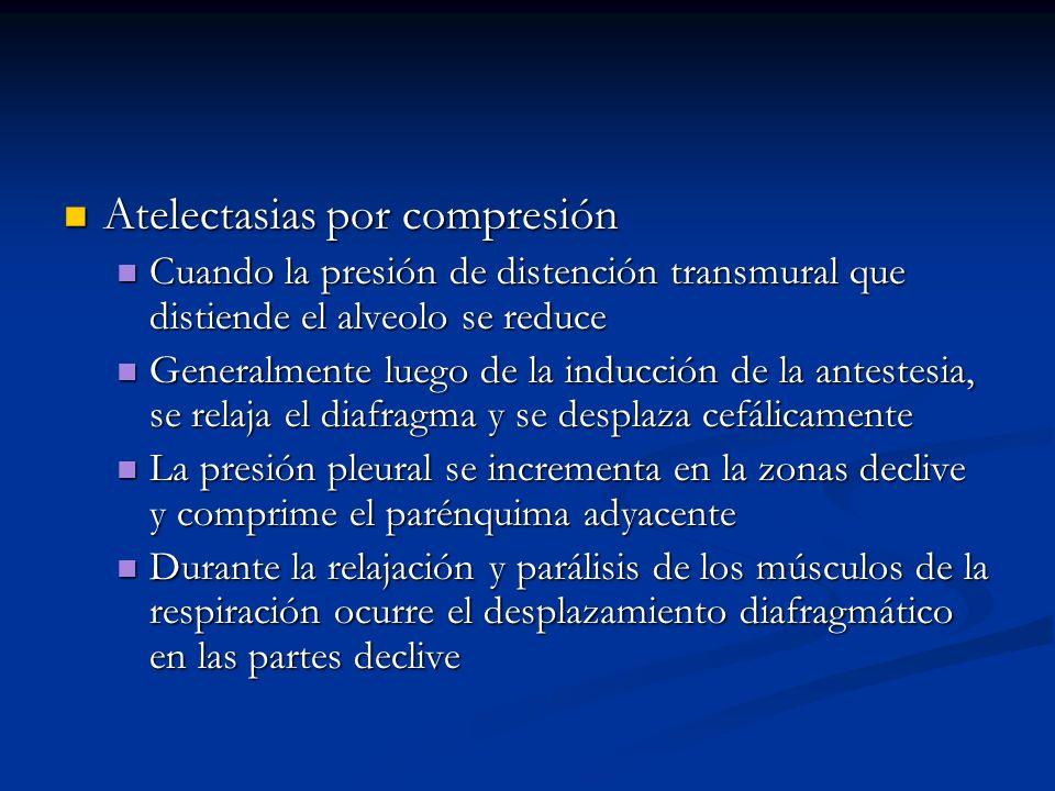 Atelectasias por compresión