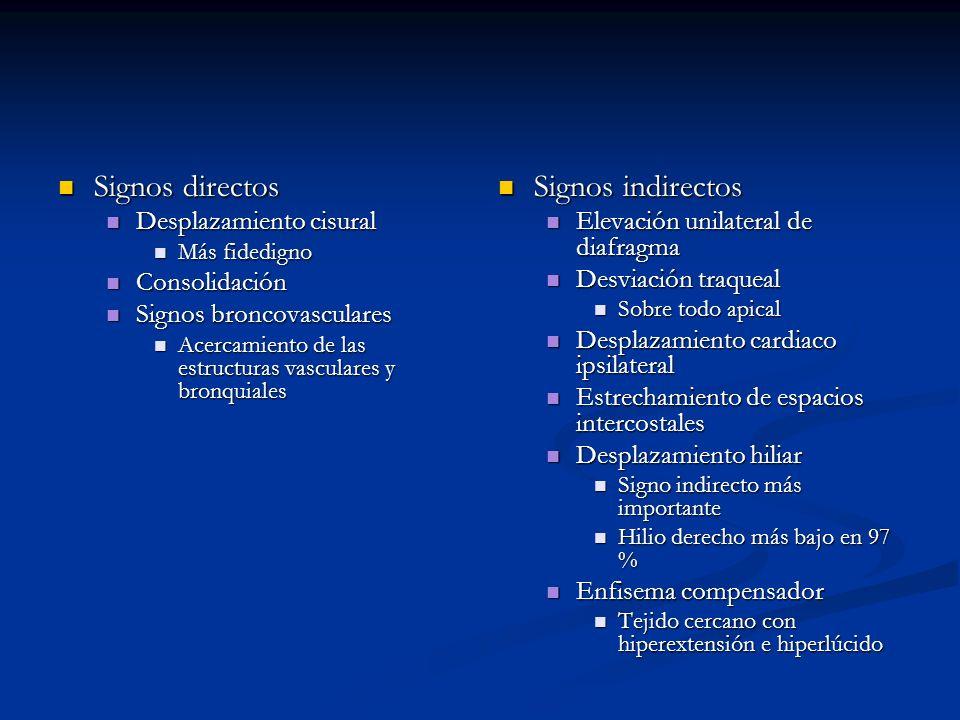 Signos directos Signos indirectos Desplazamiento cisural Consolidación