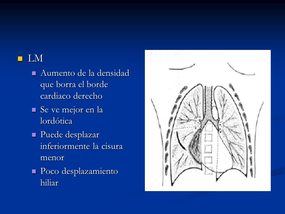 LM Aumento de la densidad que borra el borde cardiaco derecho