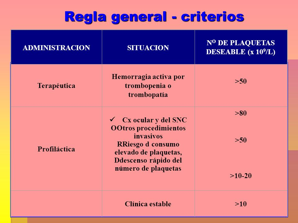 Regla general - criterios