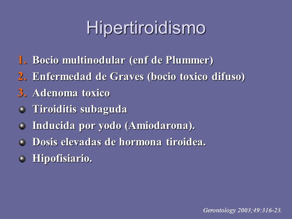 Hipertiroidismo Bocio multinodular (enf de Plummer)