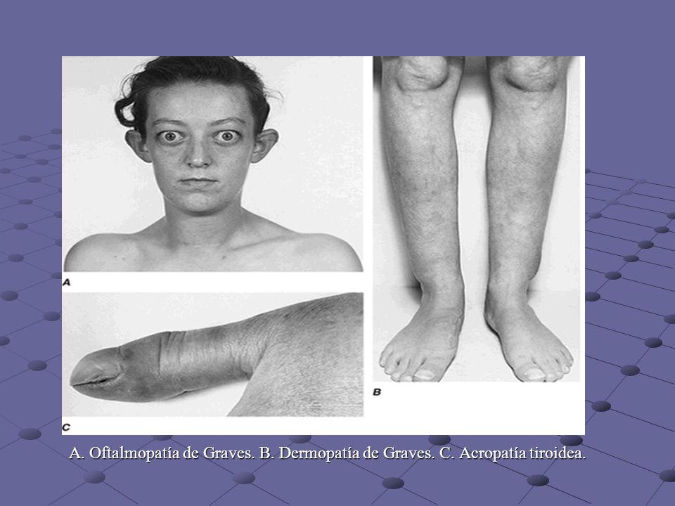 A. Oftalmopatía de Graves. B. Dermopatía de Graves. C