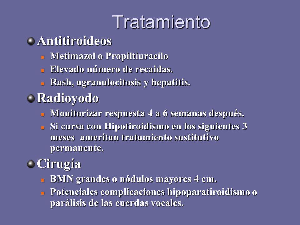 Tratamiento Antitiroideos Radioyodo Cirugía