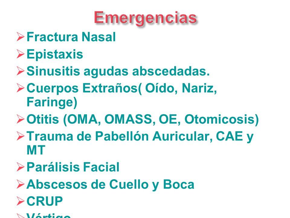 Emergencias Fractura Nasal Epistaxis Sinusitis agudas abscedadas.