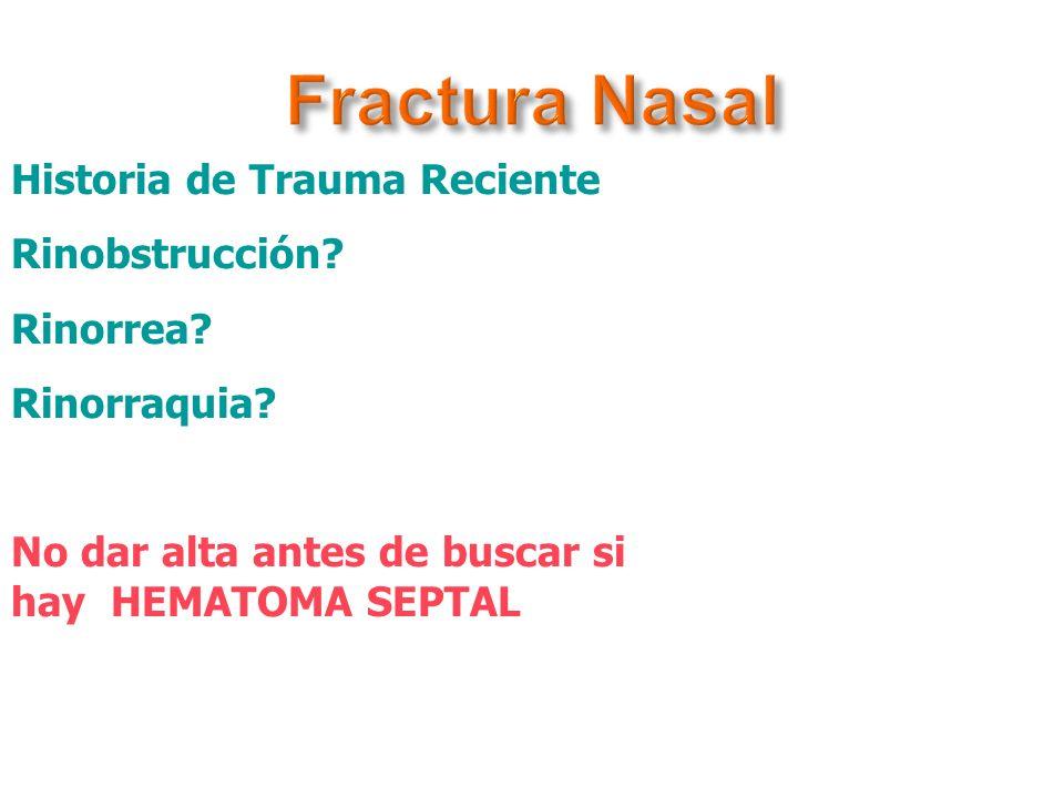 Fractura Nasal Historia de Trauma Reciente Rinobstrucción Rinorrea