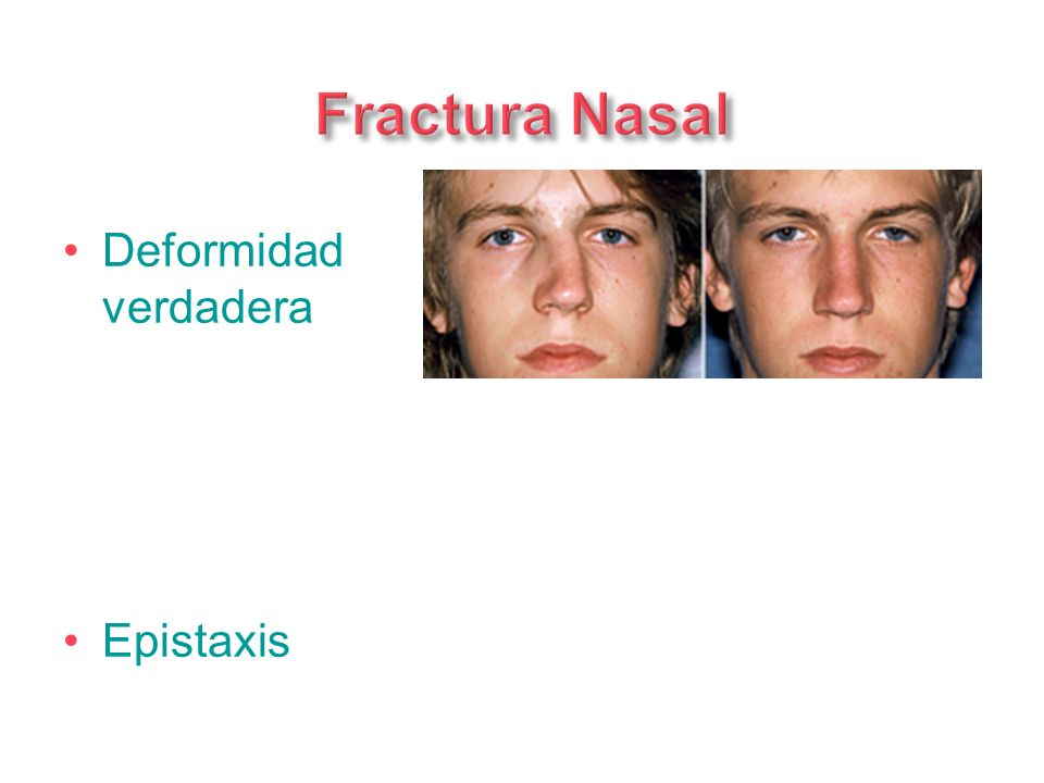 Fractura Nasal Deformidad verdadera Epistaxis