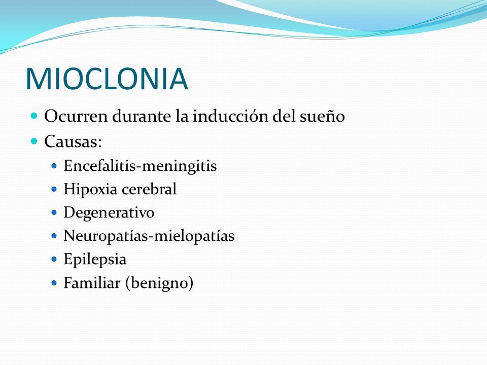 MIOCLONIA Ocurren durante la inducción del sueño Causas: