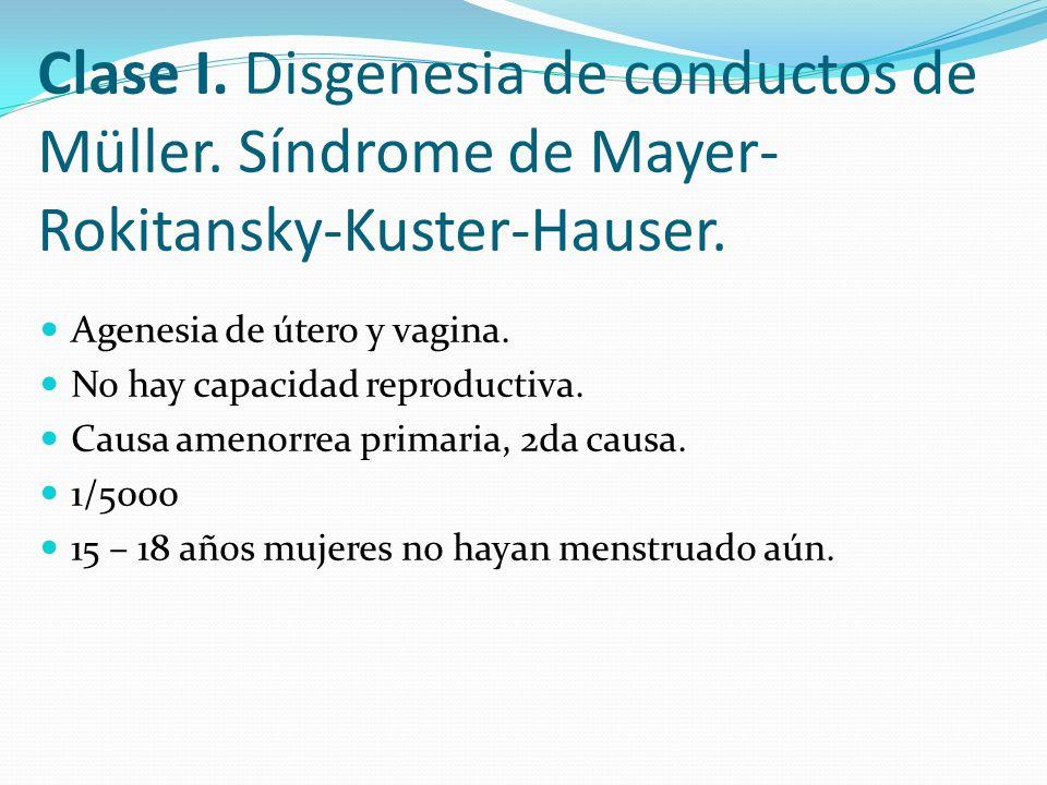 Clase I. Disgenesia de conductos de Müller