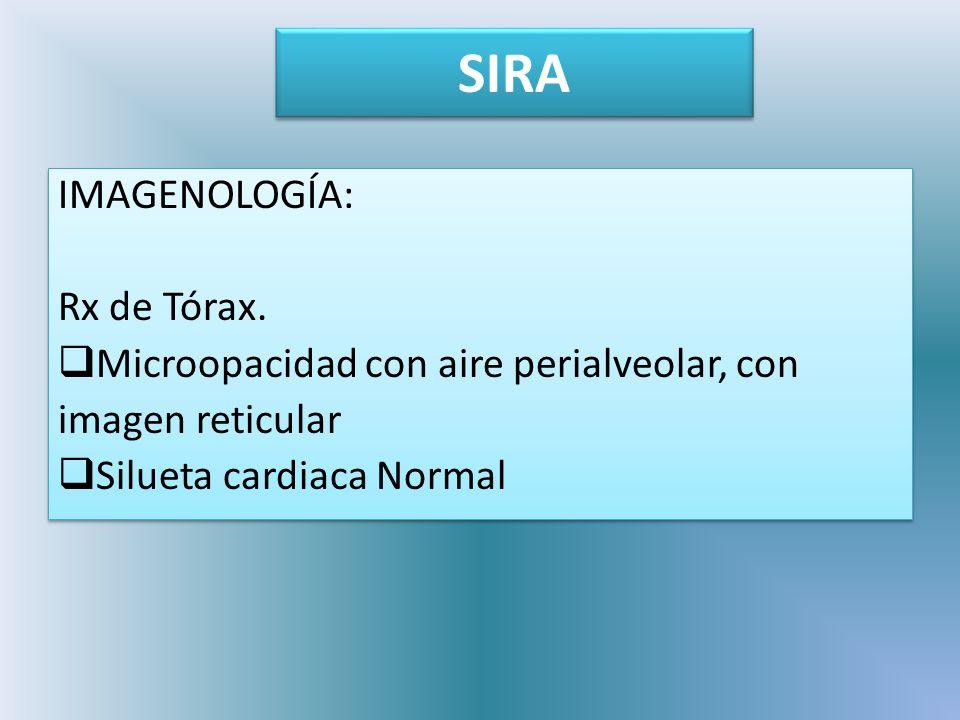 SIRA IMAGENOLOGÍA: Rx de Tórax.