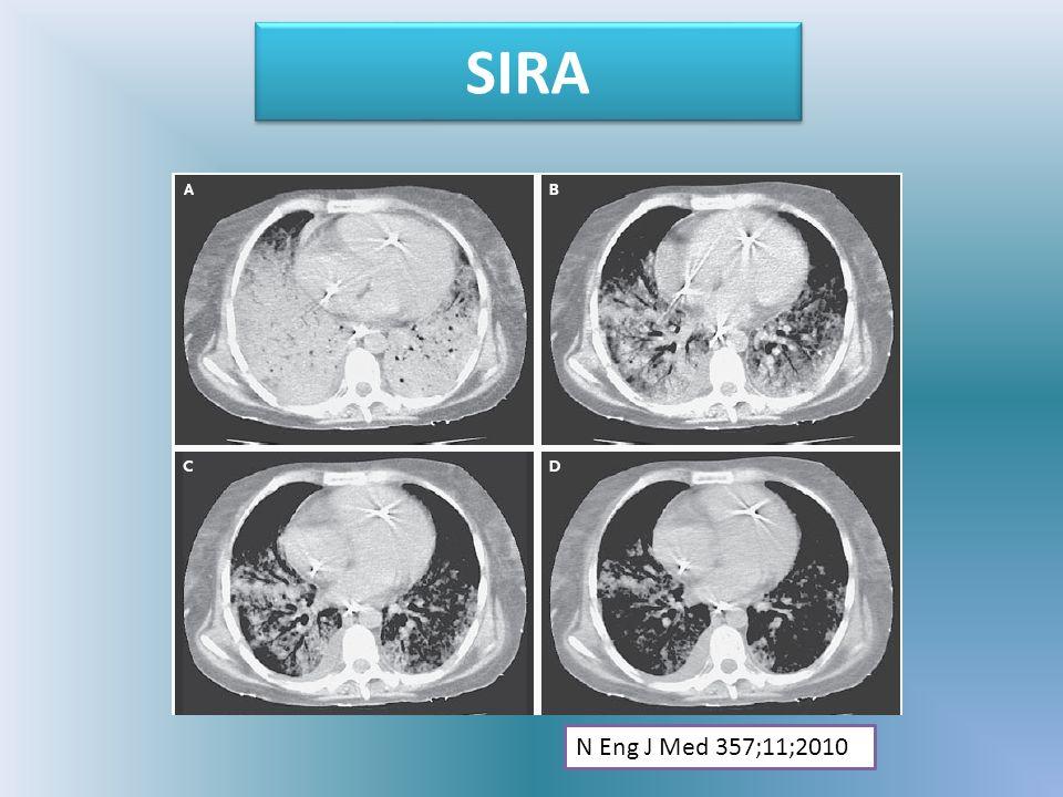 SIRA N Eng J Med 357;11;2010