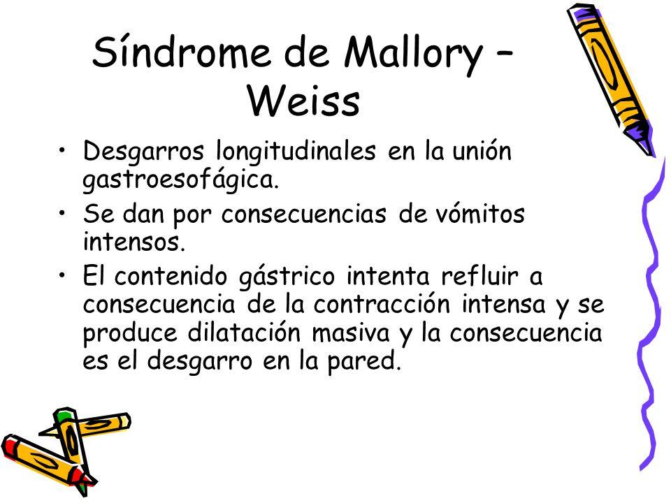 Síndrome de Mallory – Weiss