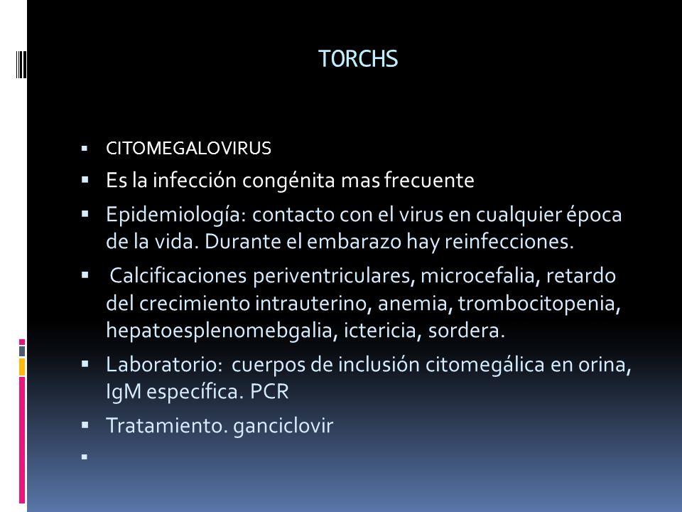 TORCHS Es la infección congénita mas frecuente