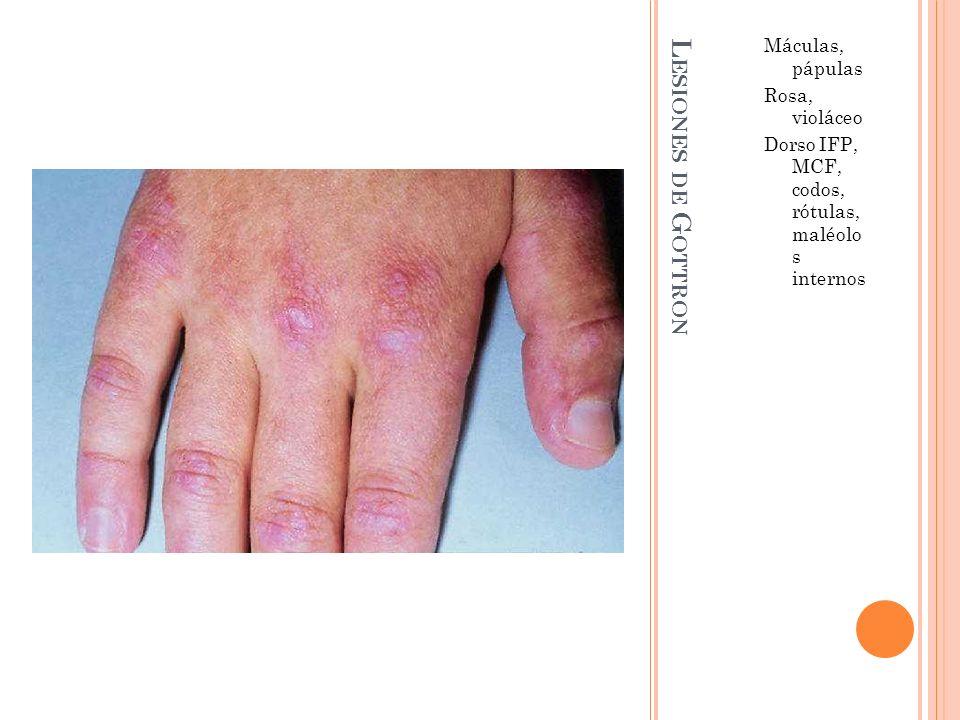 Lesiones de Gottron Máculas, pápulas Rosa, violáceo