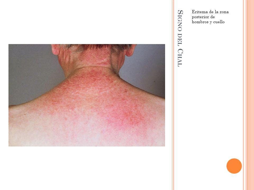 Eritema de la zona posterior de hombros y cuello