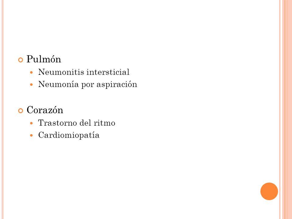 Pulmón Corazón Neumonitis intersticial Neumonía por aspiración
