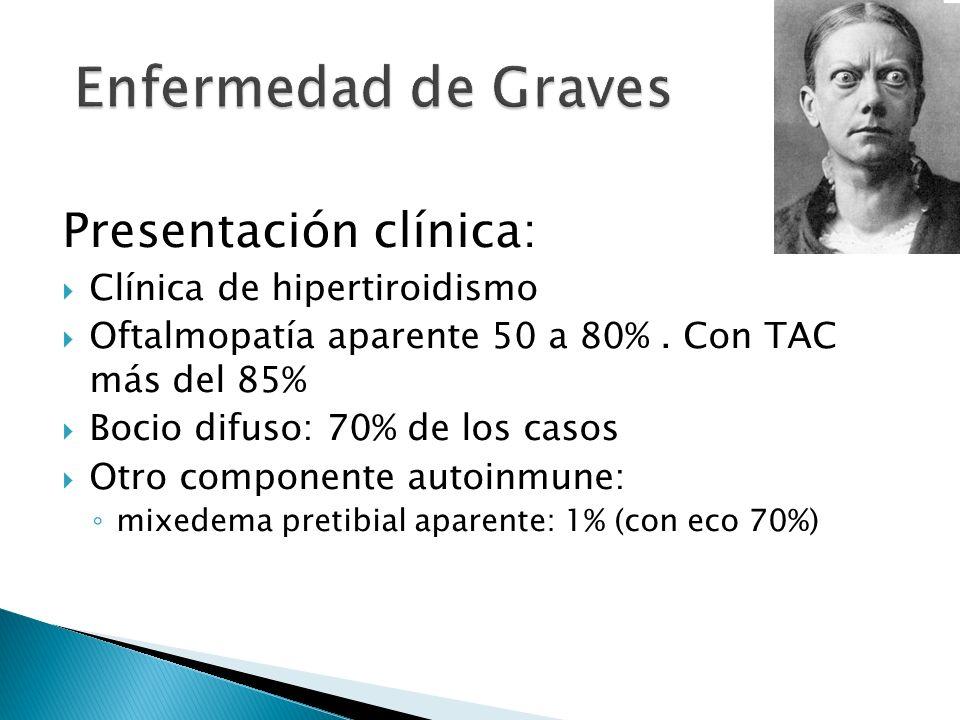 Enfermedad de Graves Presentación clínica: Clínica de hipertiroidismo