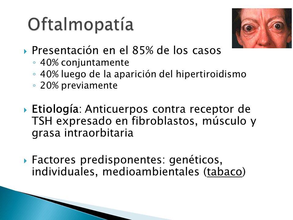 Oftalmopatía Presentación en el 85% de los casos