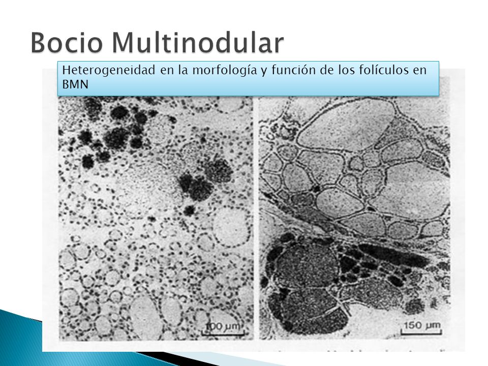 Bocio Multinodular Heterogeneidad en la morfología y función de los folículos en BMN