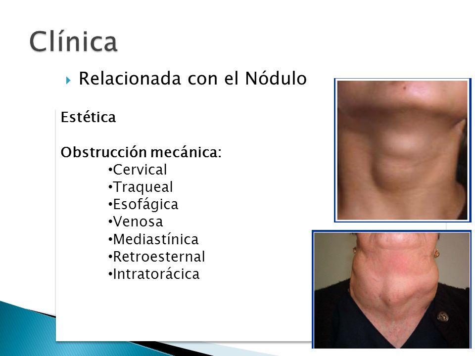 Clínica Relacionada con el Nódulo