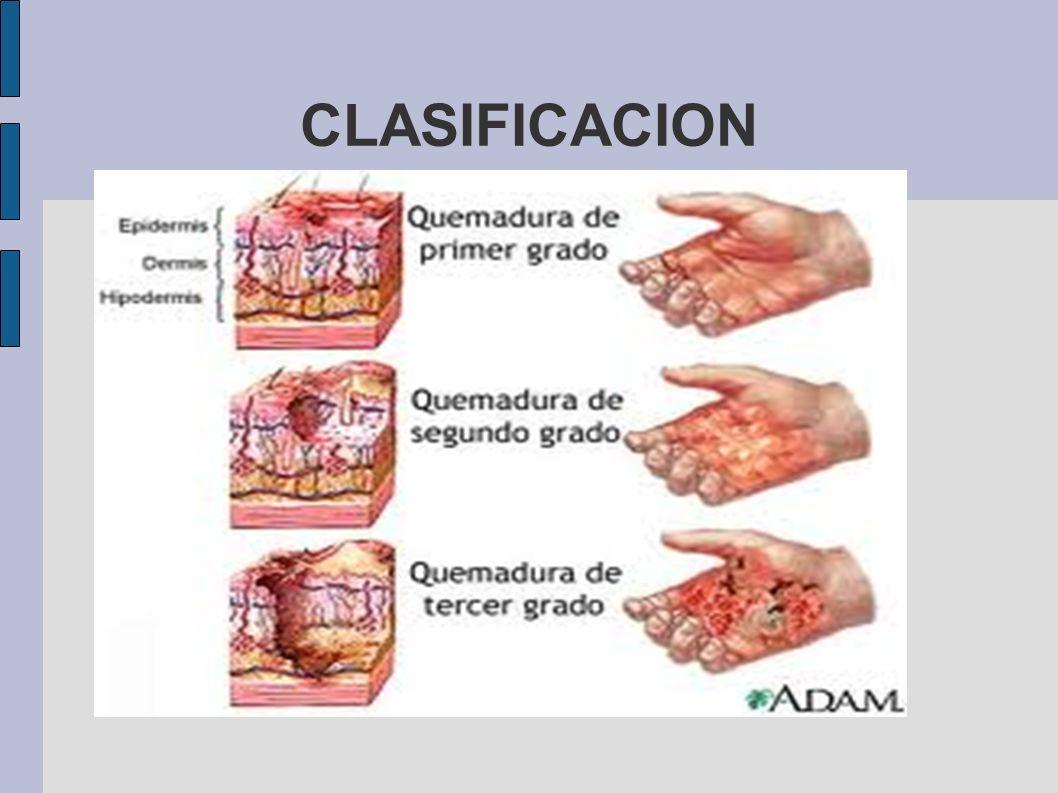 CLASIFICACION Primer grado: epidermis Segundo: incluye dermis