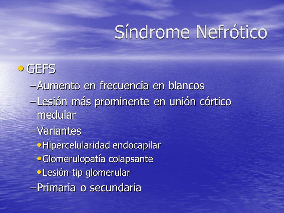 Síndrome Nefrótico GEFS Aumento en frecuencia en blancos