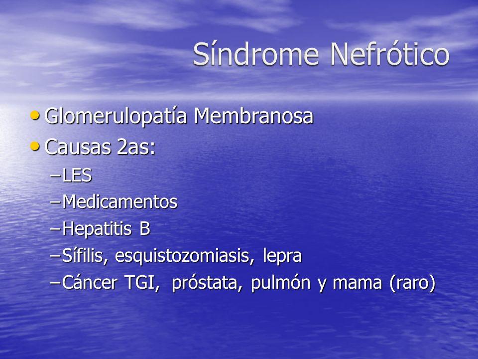 Síndrome Nefrótico Glomerulopatía Membranosa Causas 2as: LES