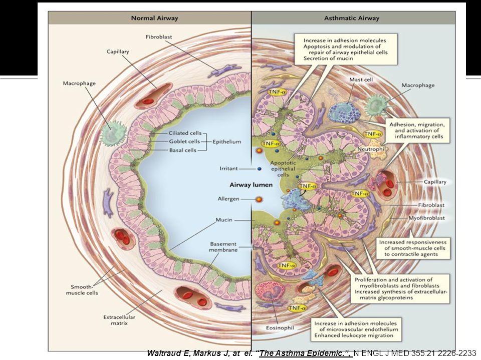 Waltraud E, Markus J, at el. The Asthma Epidemic