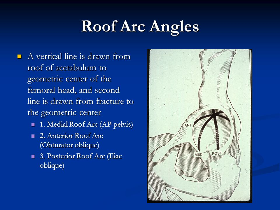 Roof Arc Angles