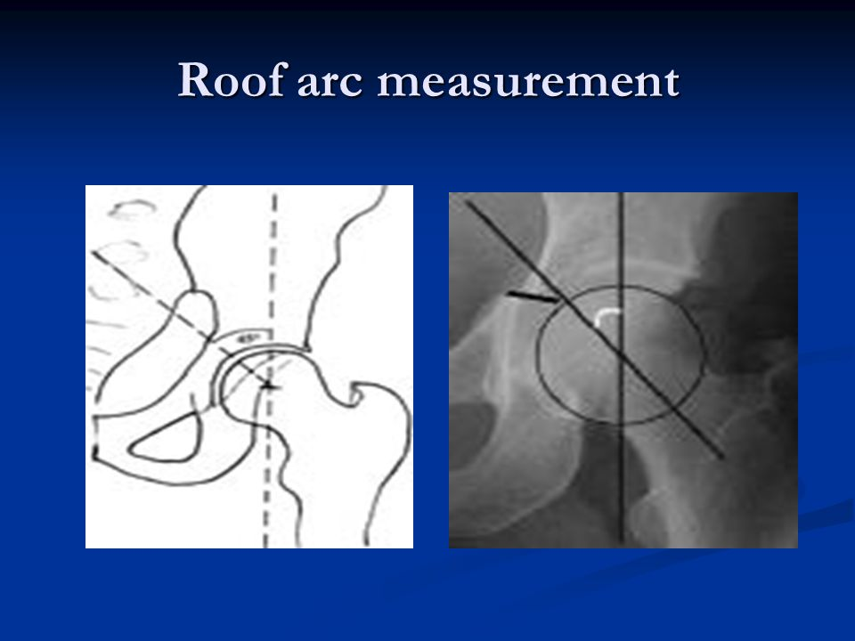 Roof arc measurement
