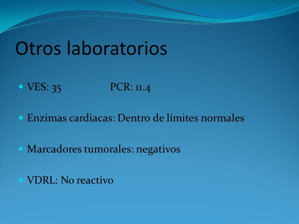 Otros laboratorios VES: 35 PCR: 11.4