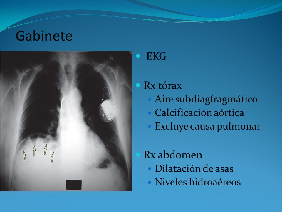 Gabinete EKG Rx tórax Rx abdomen Aire subdiagfragmático