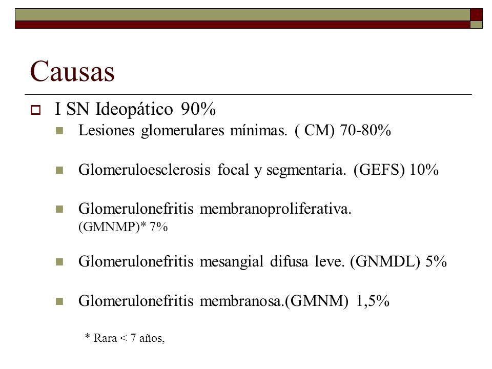 Causas I SN Ideopático 90% Lesiones glomerulares mínimas. ( CM) 70-80%