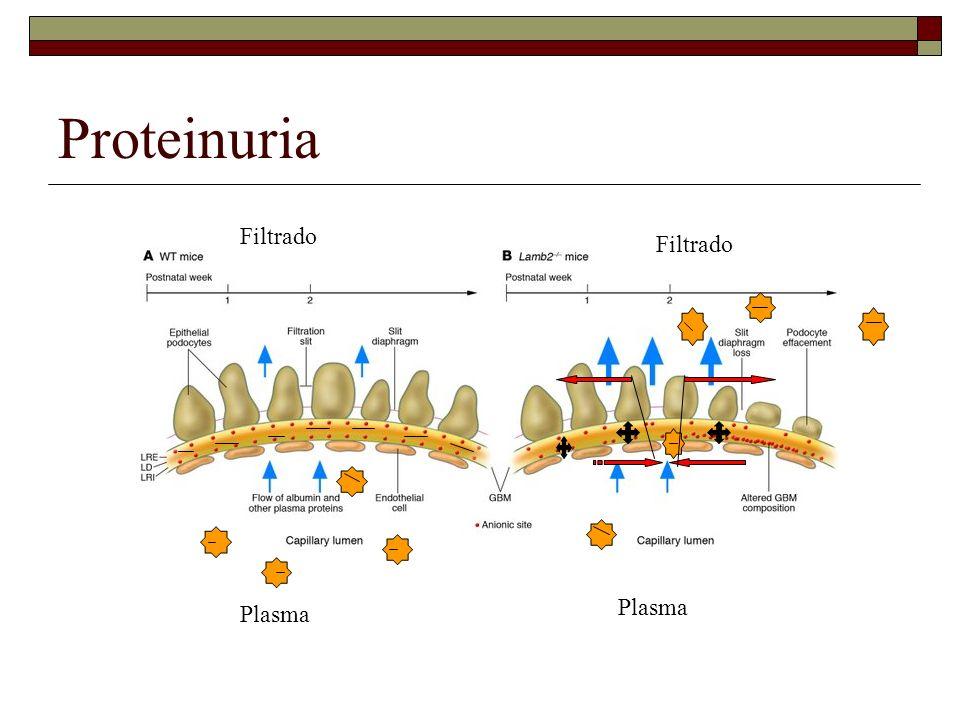 Proteinuria Filtrado Filtrado Plasma Plasma