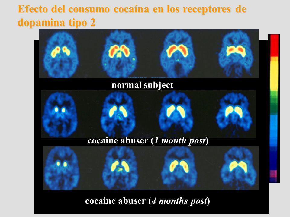 Efecto del consumo cocaína en los receptores de dopamina tipo 2