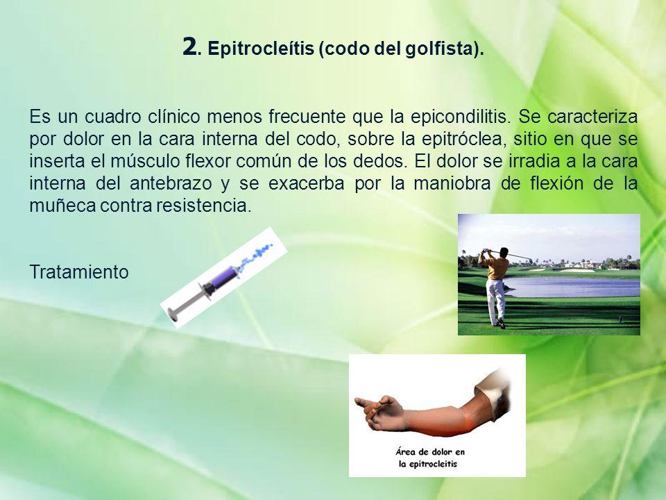 2. Epitrocleítis (codo del golfista).