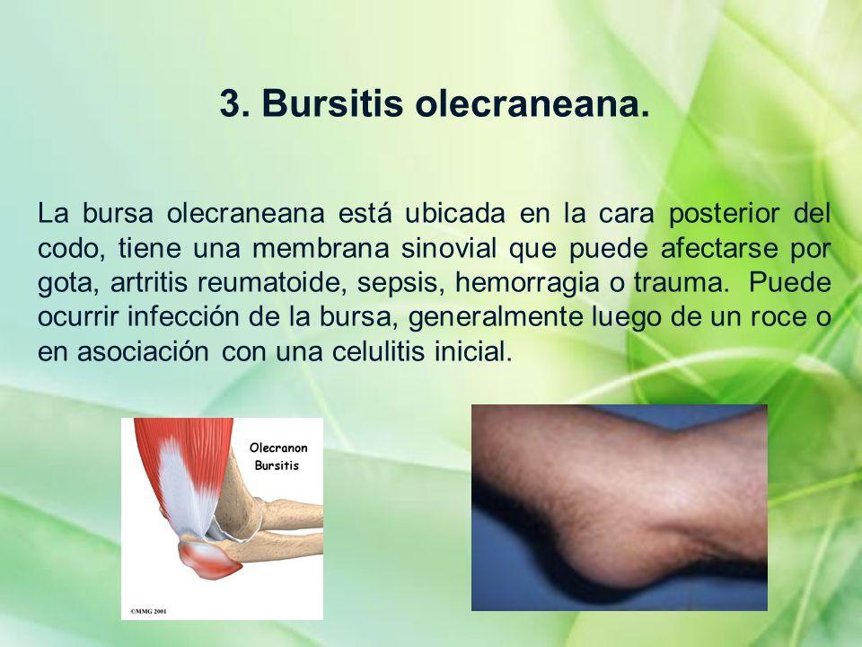 3. Bursitis olecraneana.