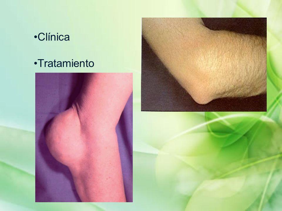 Clínica Tratamiento