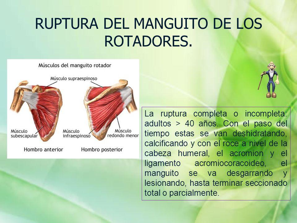RUPTURA DEL MANGUITO DE LOS ROTADORES.