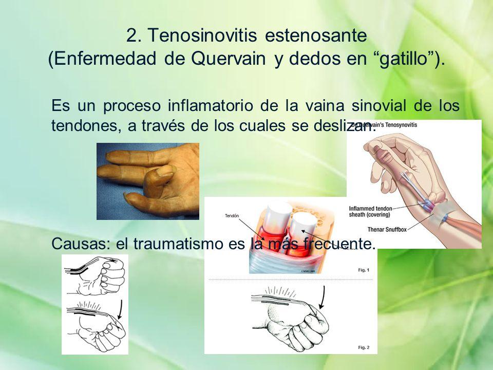2. Tenosinovitis estenosante (Enfermedad de Quervain y dedos en gatillo ).