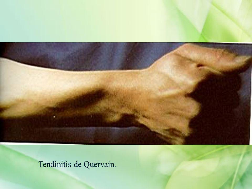 Tendinitis de Quervain.
