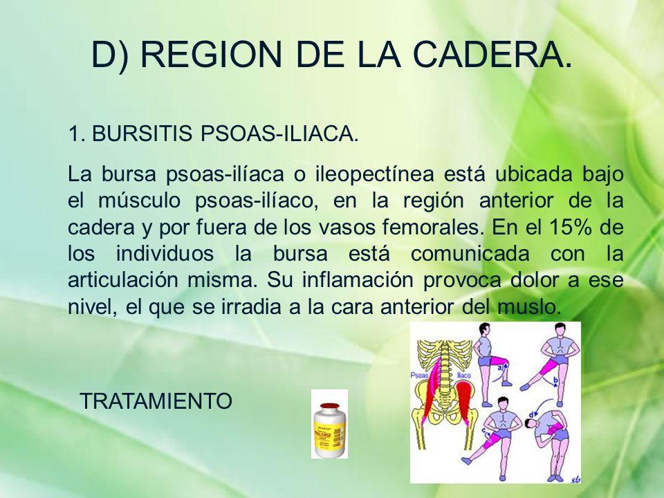 D) REGION DE LA CADERA. 1. BURSITIS PSOAS-ILIACA.