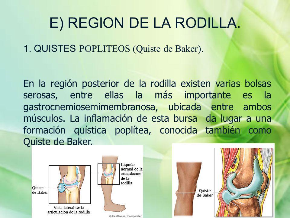 E) REGION DE LA RODILLA. 1. QUISTES POPLITEOS (Quiste de Baker).